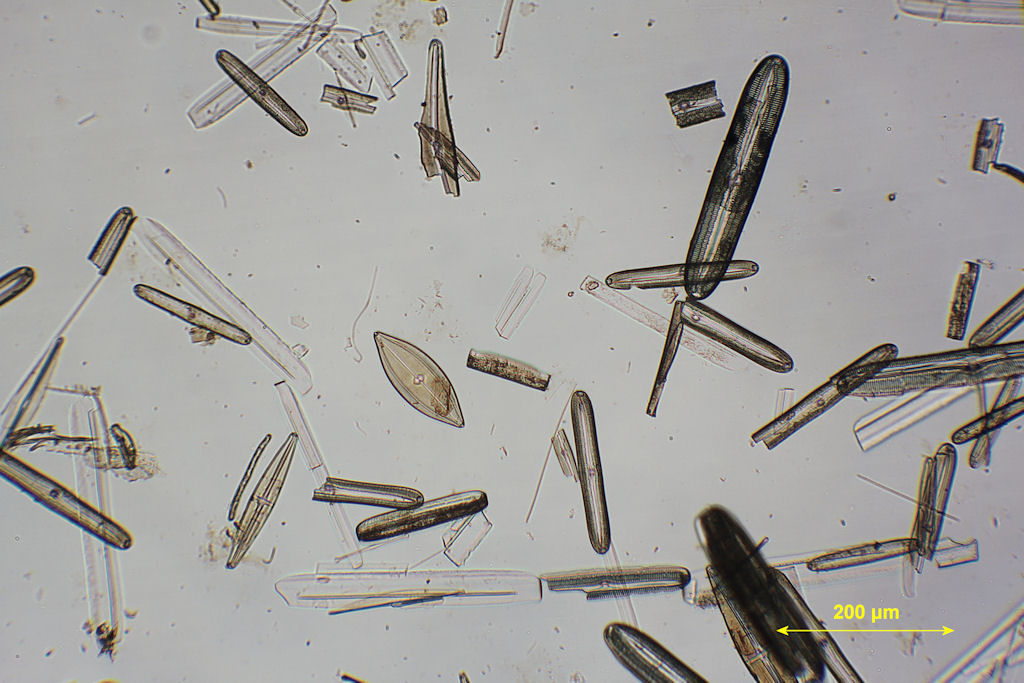 Diatoms Microscope This is from my diatom slide