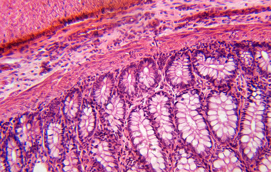 Photomacrography View Topic Dog Stomach Pyloric Region