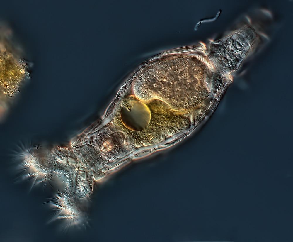 Adventures of Rob the Rotifer! - Brainy Biology